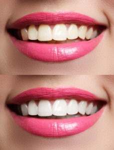 Teeth Whitening Tips Lincoln CA